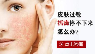 皮肤过敏怎么办好